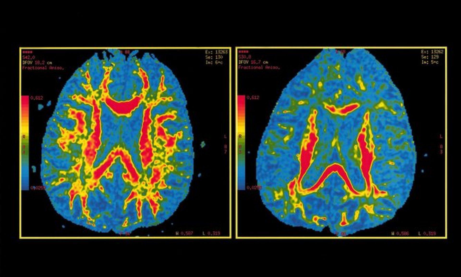 ¿Cuándo puedes contraer Alzheimer?