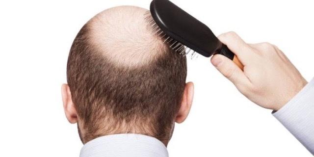 próstata y pérdida de cabello en casa