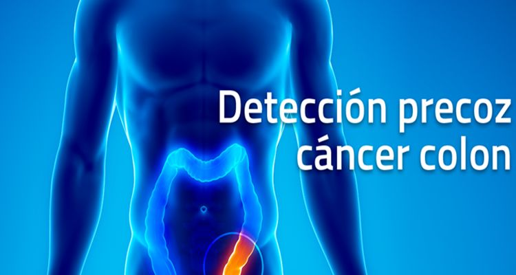 cáncer de colon origen y tratamiento