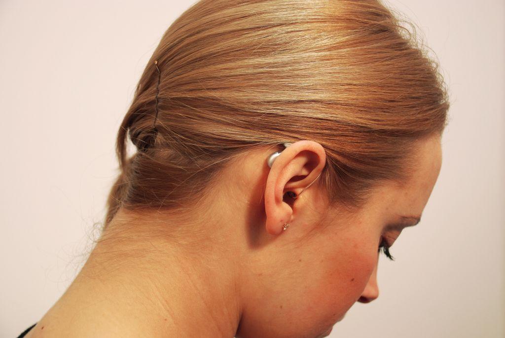 Hipoacusia o pérdida de la audición: ¿por qué cada vez más jóvenes la padecen?