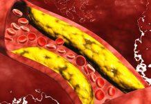 arterias obstruídas por colesterol
