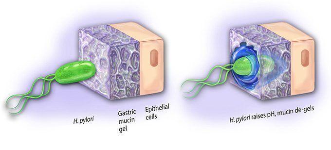 cancer del estomago causas