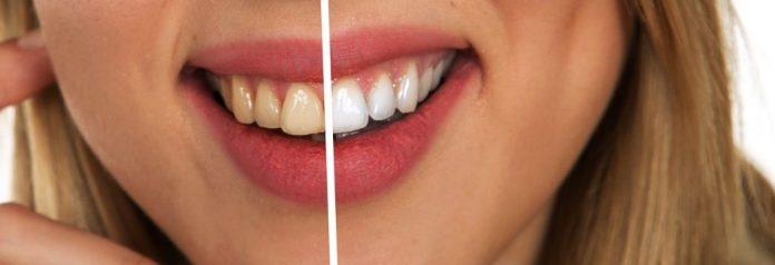 higiente dientes