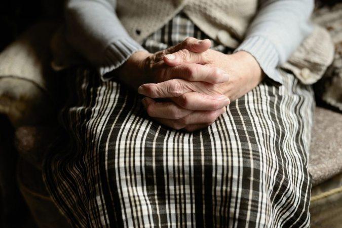 Artritis psoriásica Kiko Hernández dedos