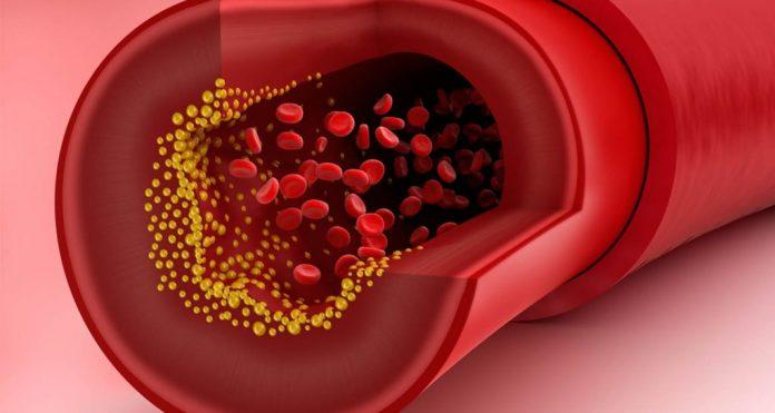 colesterol en las arterias