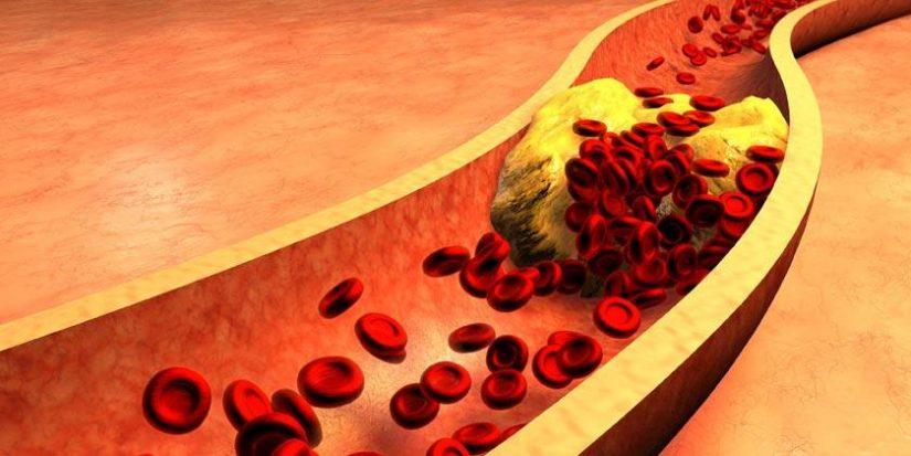 colesterol por enfermedad