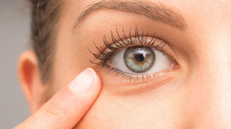 Blefaritis, una de las principales causas del síndrome del ojo seco, agravada por el uso continuado de la mascarilla