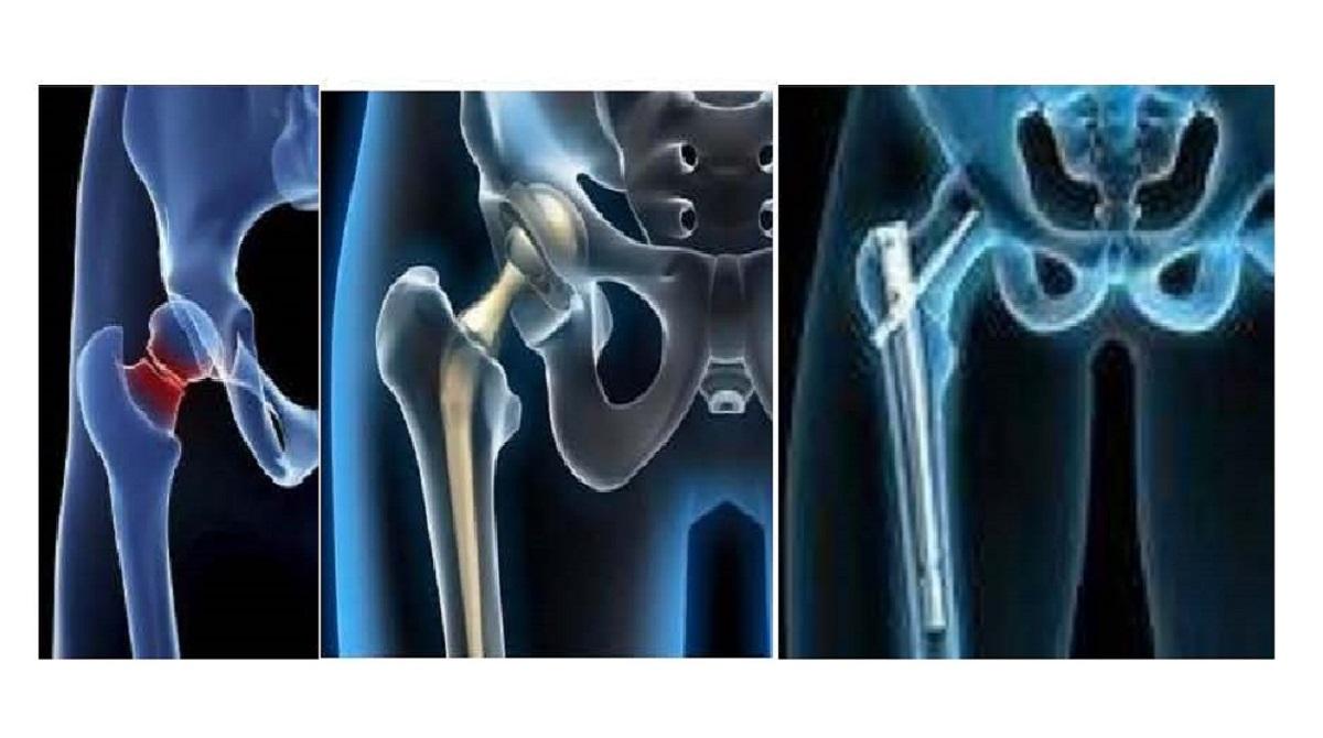 Experta advierte de la importancia de la cirugía precoz en pacientes con fracturas de cadera