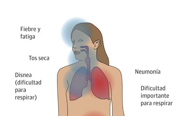 ¿Cuáles son los síntomas de la neumonía?