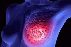 ¿Cuáles son los tipos comunes de cáncer de mama?